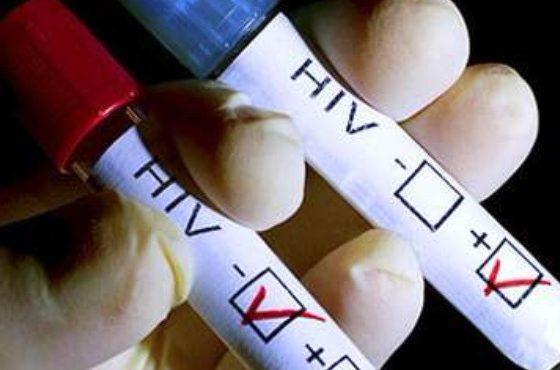 Учени: Открихме как да унищожим вируса на ХИВ